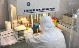 Aparat nou pentru depistarea virusului COVID-19 la Spitalul TBC din Galați